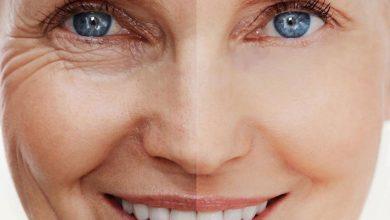 Photo of اثرات جانبی کلاژن پپتید بر روی پوست
